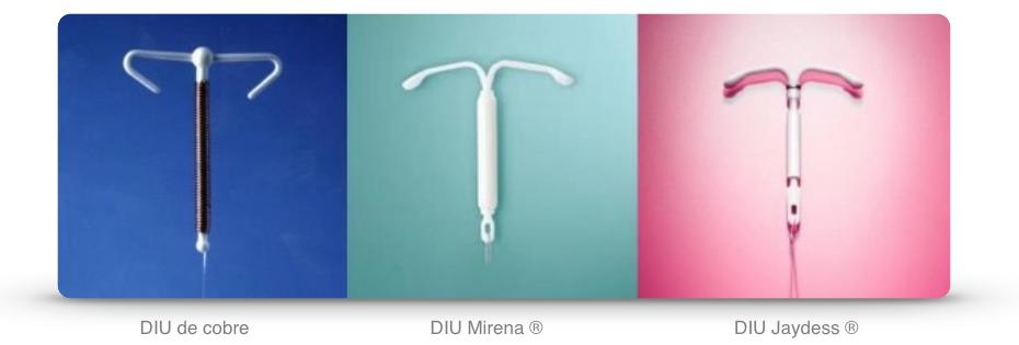 Contracepção… DIU e SIU